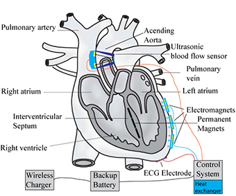 Student-Designed Heart Pump Is Lighter Than the Rest - ASME