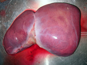 3D Printing: A New Ally for the Liver